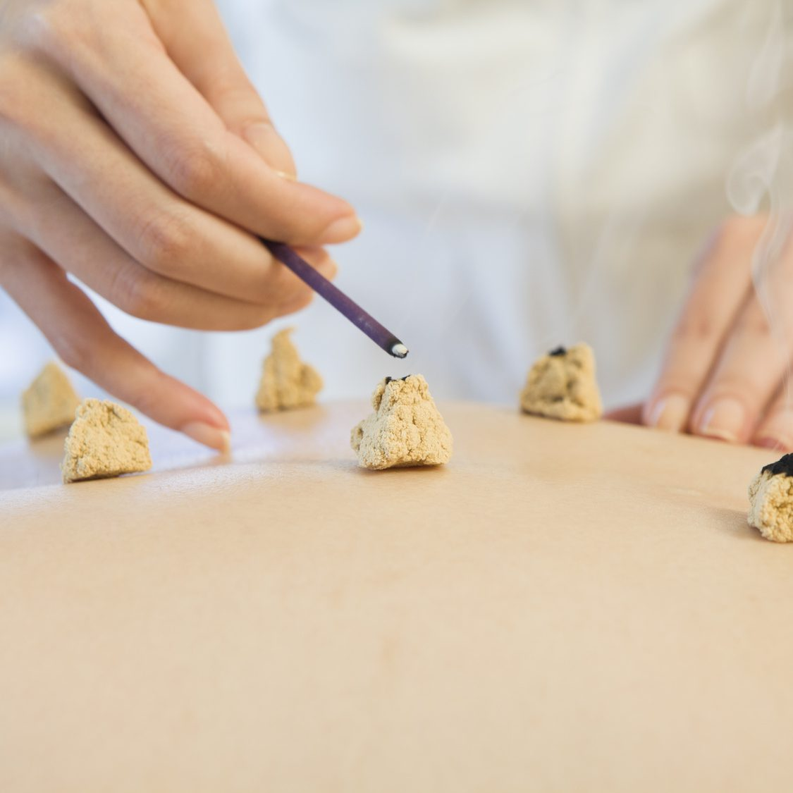 The state that instigates moxibustion